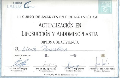 Liposuction 2003